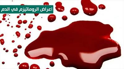 اعراض الروماتيزم في الدم