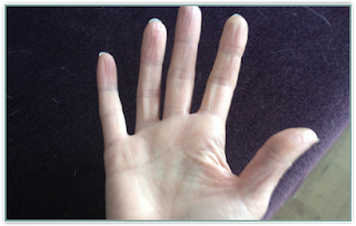 curling ring finger