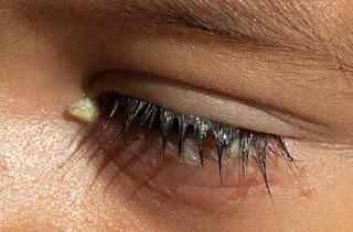 معنى العين المصابة في حلم العزباء