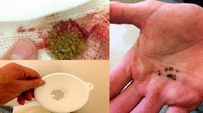 7 Bahan Alami Yang Mampu Hancurkan Batu Ginjal