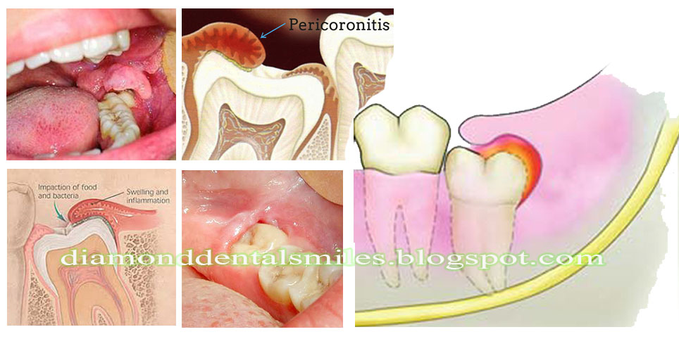 Mengenal Gigi Impaksi Apa Mengapa Dan Bagaimana