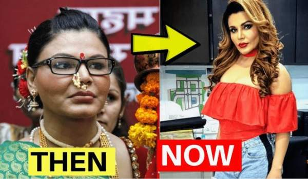 राखी सावंत plastic surgery now and then