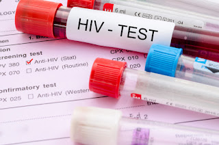 Mulai 2020 Calon Pengantin di Kota Mojokerto Wajib Tes HIV