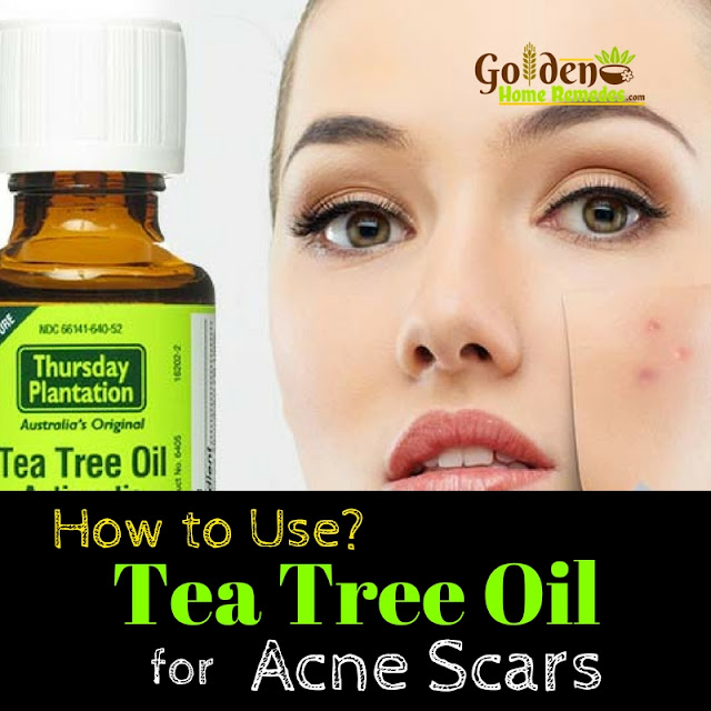 Tea Tree Oil For Acne Scars, Tea Tree Oil Acne Scars, Tea Tree Oil And Acne Scars, How To Use Tea Tree Oil For Acne Scars, Is Tea Tree Oil Good For Acne Scars, How To Get Rid Of Acne Scars, How To Get Rid Of Acne Scars Fast,