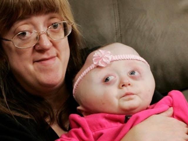 Монстры по рождению: как генетические недуги превращают людей в уродов