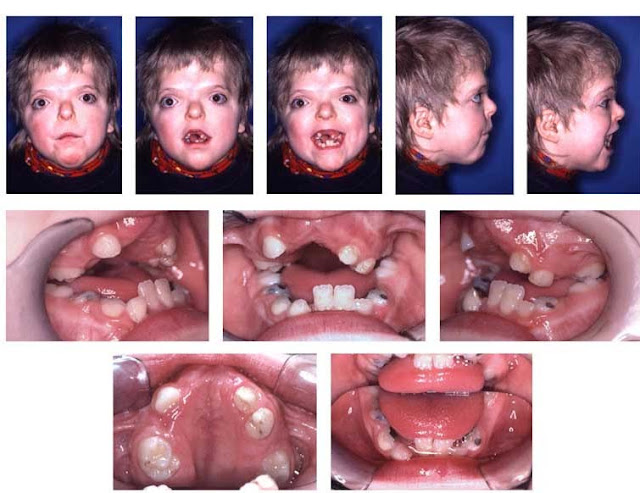 Have your children tested out by an ear, nose, and throat specialist (otolaryngologist) if you suspect SDB symptoms in them. Every so often, doctors judge of SDB based on physical or historical analysis. While on some other occasions, they may refer for further sleep examination, particularly if a child is below three years of age, or is a suspect of harsh obstructive sleep apnea because of neuromuscular destruction, excessive weight, or craniofacial syndromes.