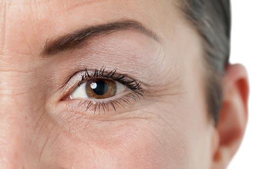 Niacinamide giúp chống lão hóa và cải thiện các nếp nhăn.