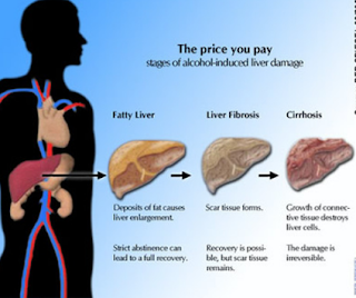 Cirrhosis is scarring of the liver caused by long-term liver damage