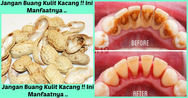 Jangan Buang Kulit Kacang !!Ternyata Sangat Bermanfaat Untuk Membersihkan Plak / Karang Gigi Yang Membandel..