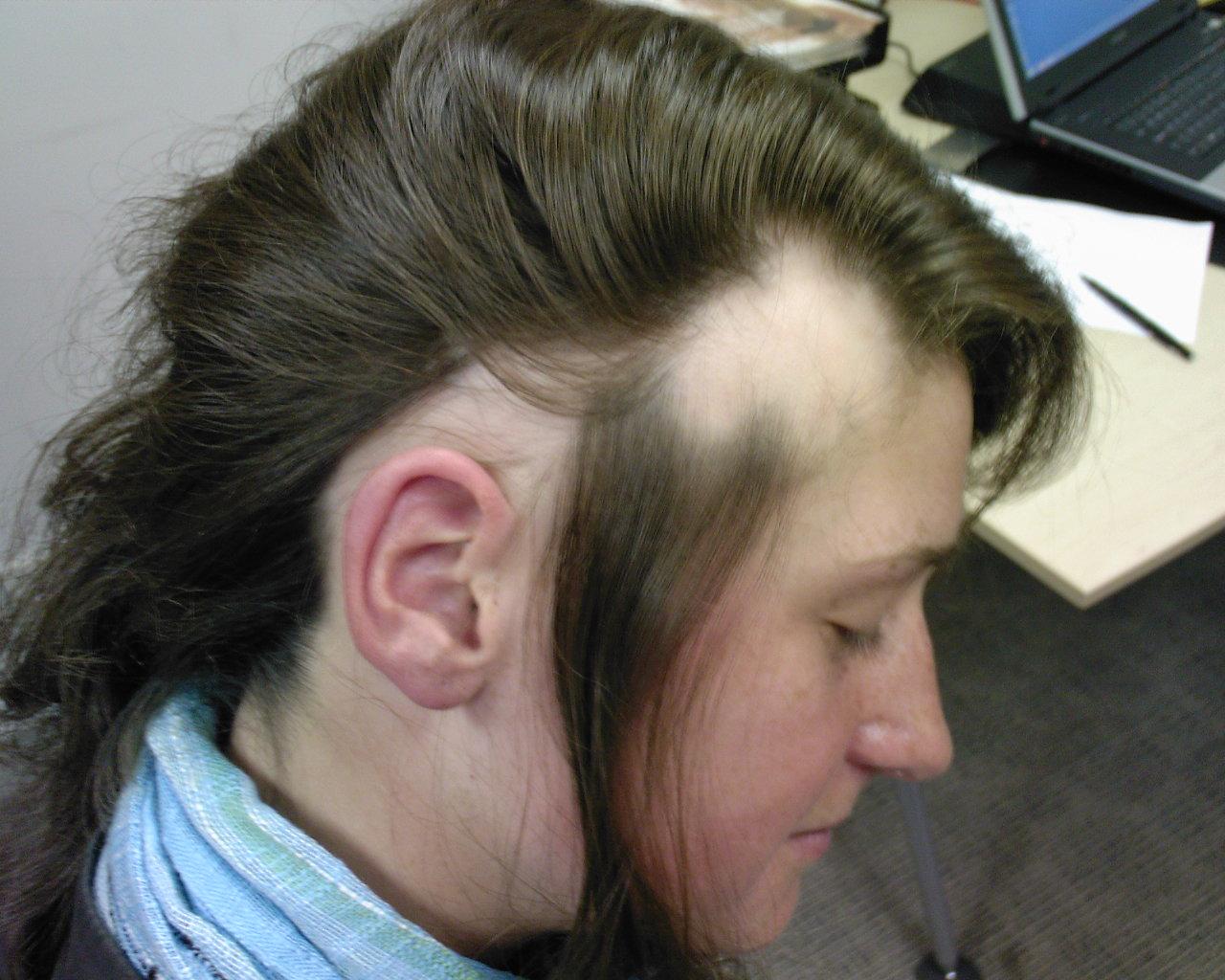 hormony powodujące wypadanie włosów