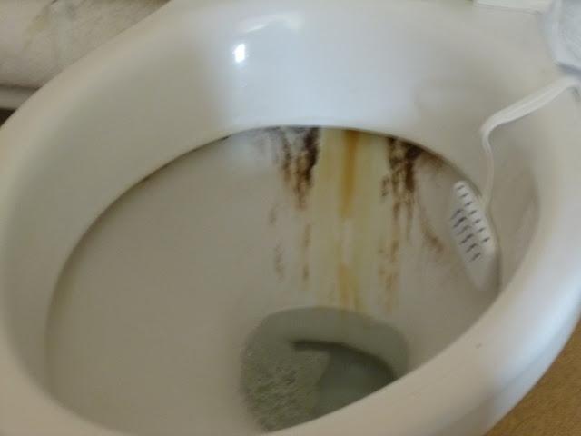 Comment détartrer un WC sale ?