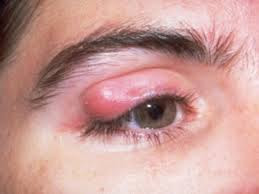 A chalazion is a hard lump in the eyelid What is a chalazion and How to treat a chalazion?
