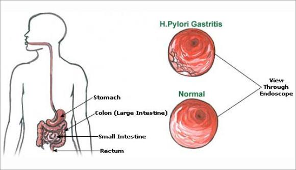 Helicobacter Pylori (H. Pylori) Tests