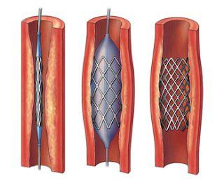 Ring on Coronary Heart biomaterial