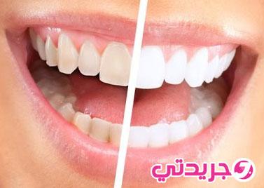 اسرع وصفة طبيعية لتبييض الاسنان من اول استعمال