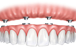 Implanting Dentures to Improve Your Personality