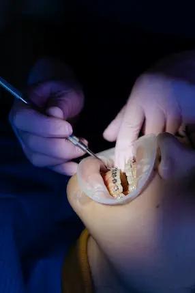 مسكن قوي لالم الاسنان