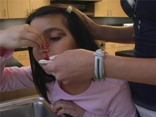 Chứng chảy máu mũi ở trẻ em