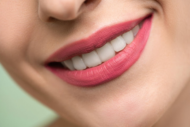 Should You Choose Invisalign To Fix Crooked Teeth, Invisalign, teeth, braces, beauty, oral care, oral health, health
