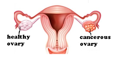 ovarian cancer for lexhansplace