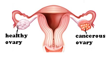 how do ovarian cysts form