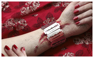 foto tangan berdarah kena silet  Akunttcom