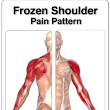 Frozen Shoulder - Should I Be Off Work?