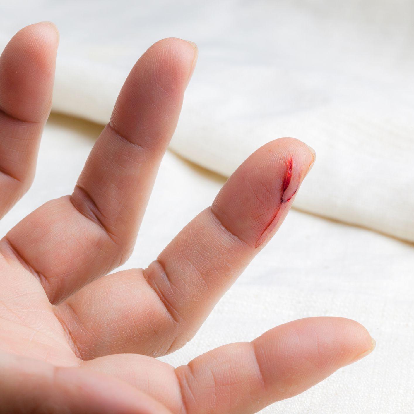 apa tanda jari berdarah kena pisau