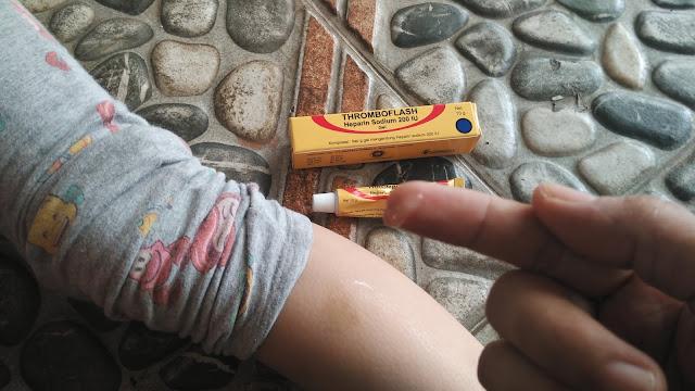 thromboflash atasi lebam