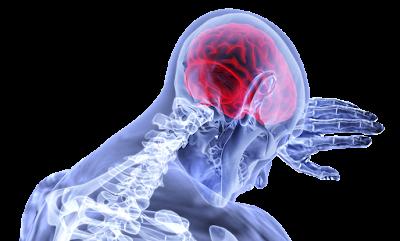 Patologi Guillain Barre Syndrome ( GBS ) Pada Tubuh Manusia  1. Pengertian Guillain Barre Syndrome  Guillain Barre Syndrome ( GBS ) adalah suatu kelainan sistem kekebalan tubuh manusia yang menyerang bagian dari susunan saraf tepi dirinya sendiri dengan karekterisasi berupa kelemahan atau arefleksia dari saraf motorik yang sifatnya progresif. Kelainan ini kadang-kadang juga menyerang saraf sensoris, otonom, maupun susunan saraf pusat.  2. Pengertian Akson dan Selaput Myelin  Akson adalah suatu perpanjangan sel-sel saraf, berbentuk panjang dan tipis; berfungsi sebagai pembawa sinyal saraf. Beberapa akson dikelilingi oleh suatu selubung yang dikenal sebagai myelin, yang mirip dengan kabel listrik yang terbungkus plastik. Selubung myelin bersifat insulator dan melindungi sel-sel saraf. Selubung ini akan meningkatkan baik kecepatan maupun jarak sinyal saraf yang ditransmisikan.  Myelin tidak membungkus akson secara utuh, namun terdapat suatu jarak diantaranya, yang dikenal sebagai Nodus Ranvier, dimana daerah ini merupakan daerah yang rentan diserang. Transmisi sinyal saraf juga akan diperlambat pada daerah ini, sehingga semakin banyak terdapat nodus ini, transmisi sinyal akan semakin lambat. Sel Saraf  3. Etiologi Guillain Barre Syndrome  Kelemahan dan paralisis yang terjadi pada GBS disebabkan karena hilangnya myelin, material yang membungkus saraf. Hilangnya myelin ini disebut demyelinisasi. Demyelinisasi menyebabkan penghantaran impuls oleh saraf tersebut menjadi lambat atau berhenti sama sekali. GBS menyebabkan inflamasi dan destruksi dari myelin dan menyerang beberapa saraf.  Oleh karena itu GBS disebut juga Acute Inflammatory Demyelinating Polyradiculoneuropathy (AIDP). Meskipun sebagian besar penderita GBS dapat sembuh spontan, namun lama perjalanan penyakit GBS tidak dapat diprediksi dan sering membutuhkan perawatan rumah sakit dan rehabilitasi selama berbulan-bulan. Seiring dengan kembalinya suplai saraf, penderita membutuhkan bantuan untuk mampu menggunakan o