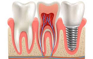 قصتي مع زراعة الاسنان