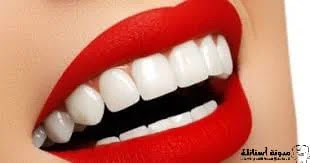 كيفية تبييض الأسنان طبيعياً في المنزل.