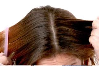 Tips Menghilangkan Kutu Rambut dan Ketombe