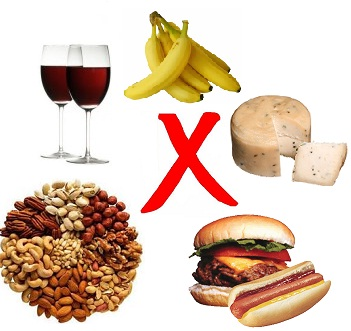 Foods High In Tyramine Migraine