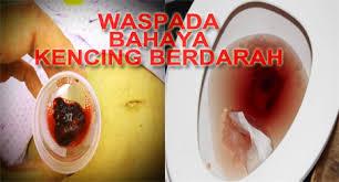 obat kencing darah di apotik