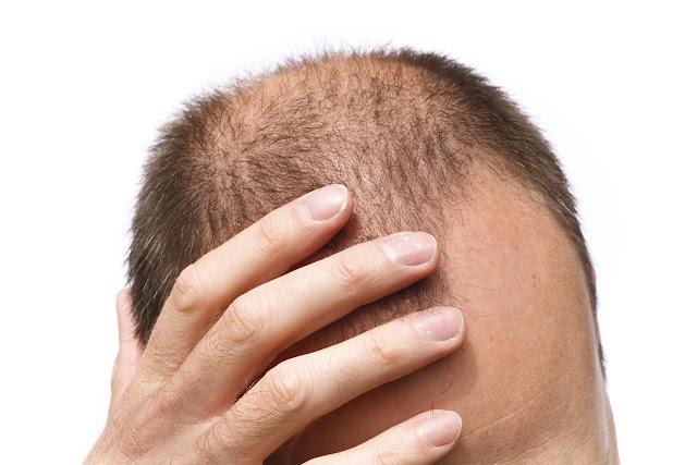 Resultado de imagem para 40% dos homens terão perda de cabelo visível aos 35 anos