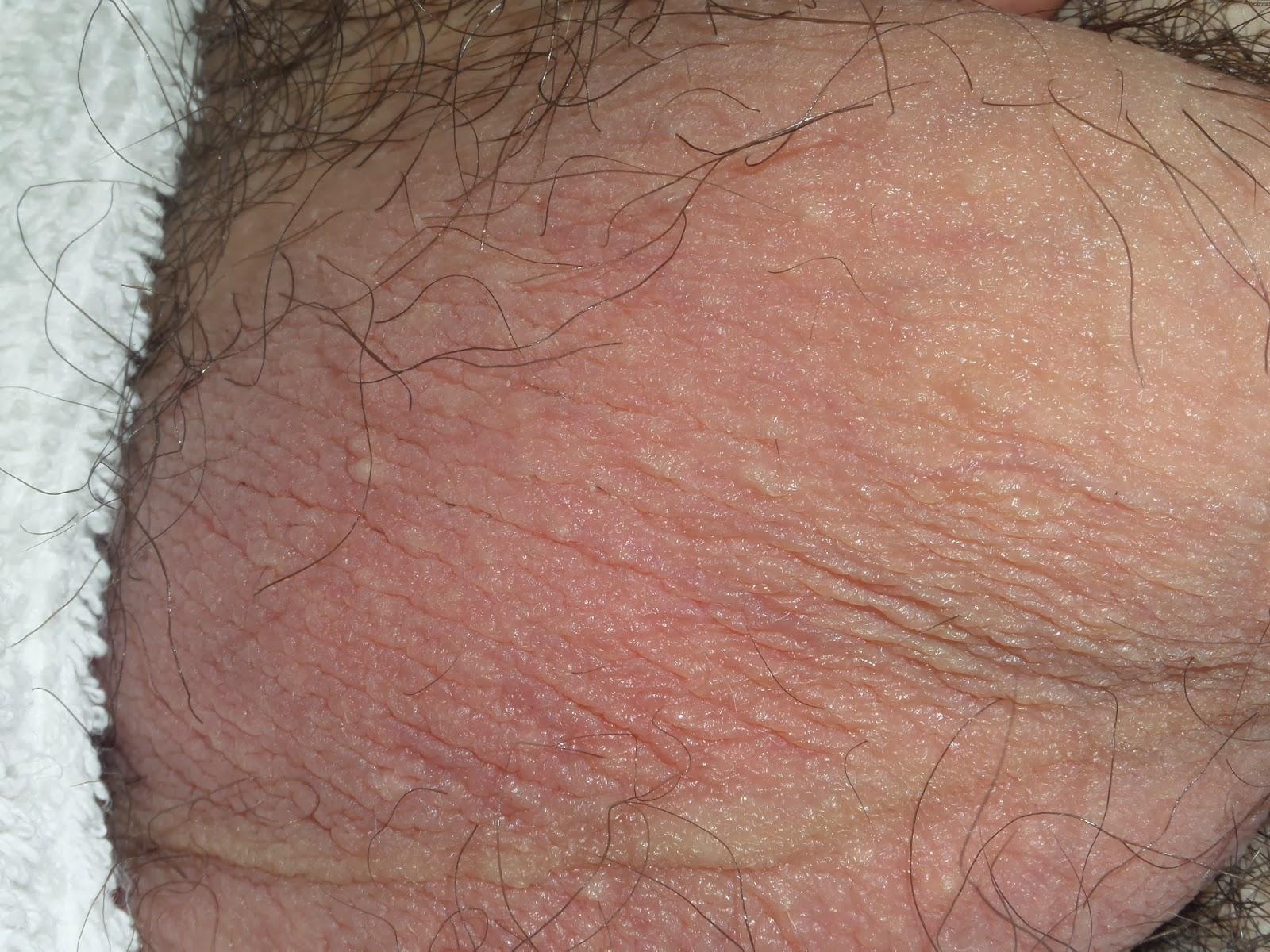 eliminacion de granulos de fordyce fordyce spots removal ...