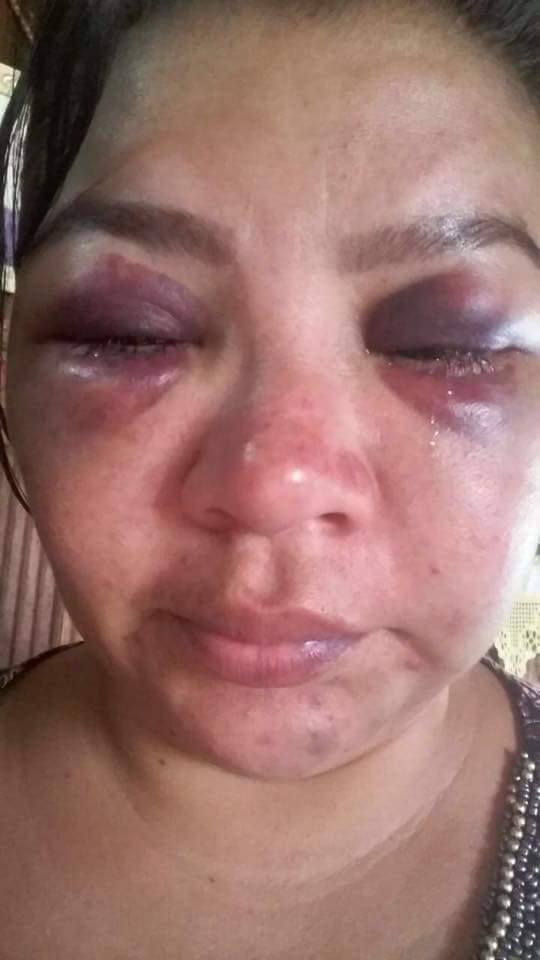 Em Porto de Moz: Homem é procurado pela polícia após espancar e violentar ex-mulher