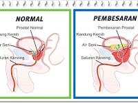 Pembesaran Prostat Jinak, Kenali Gejala Dan Cara Penanganannya