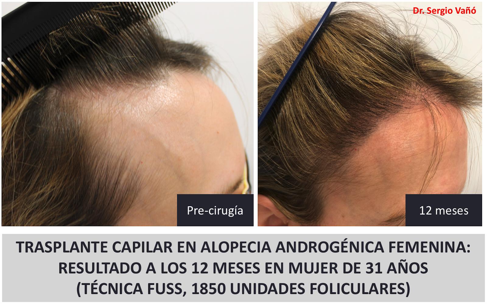 Implante de pelo madrid mujer