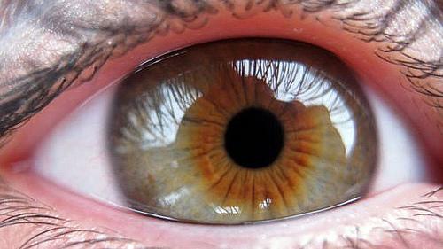 Cara Mengetahui Gejala Gangguan Penglihatan