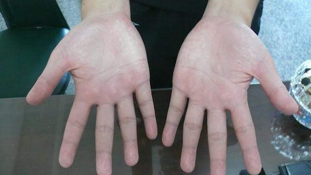 術後患者雙手立刻乾爽