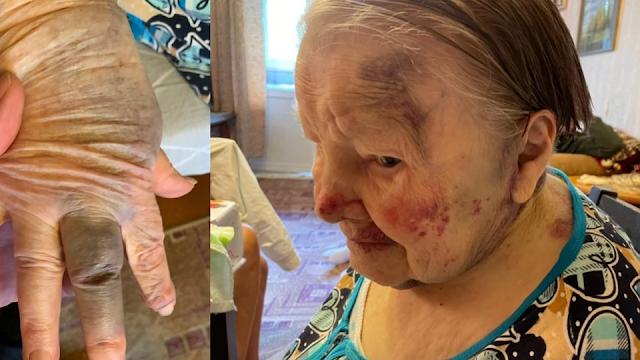 Сиделка жестоко избила 95-летнюю бабушку за просьбу измерить давление