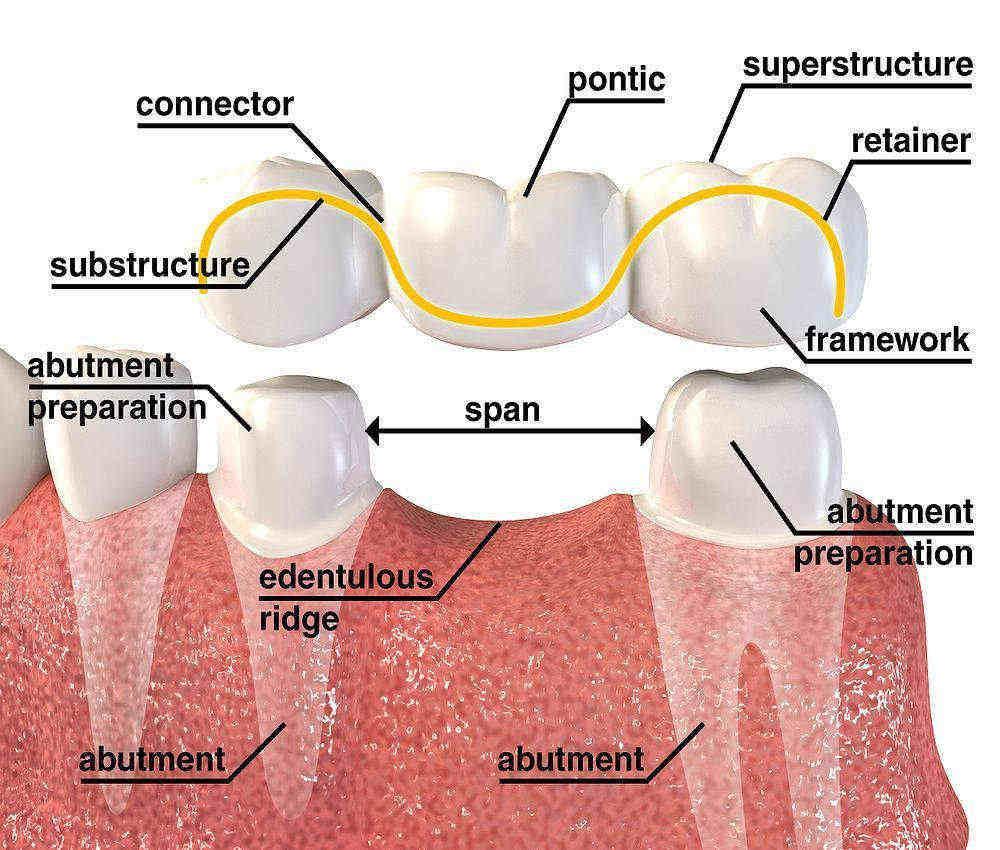 Usos de la Tomografía en Odontología