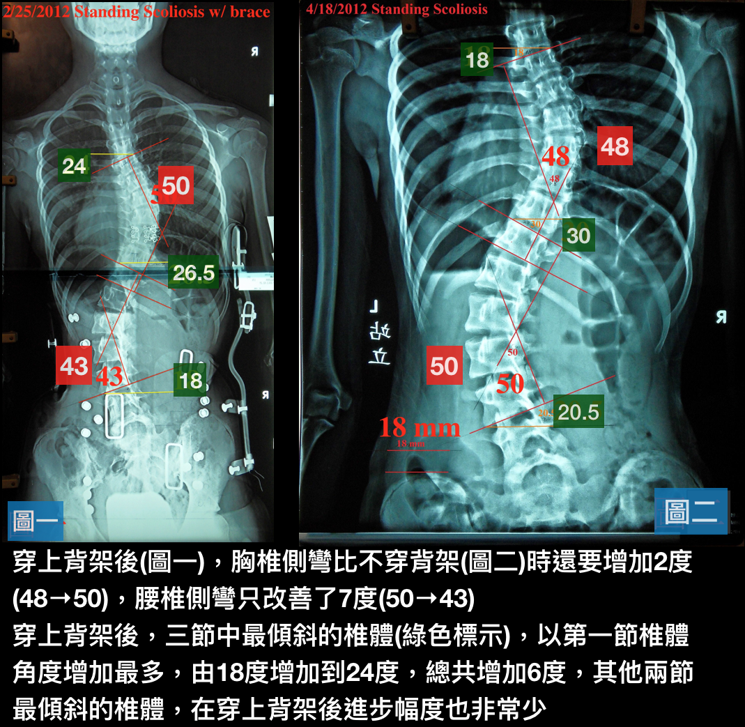 如何判斷日間型或全日型脊椎側彎背架的好壞? - 閻曉華脊骨神經醫學網