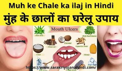 Muh ke Chale ka ilaj in Hindi