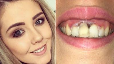 xblog_teeth.jpg.pagespeed.ic.osDCmGO2p8%2B%25281%2529