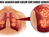 LUNGS CANCER AND COLOR FOR LUNGS CANCER - Health Care