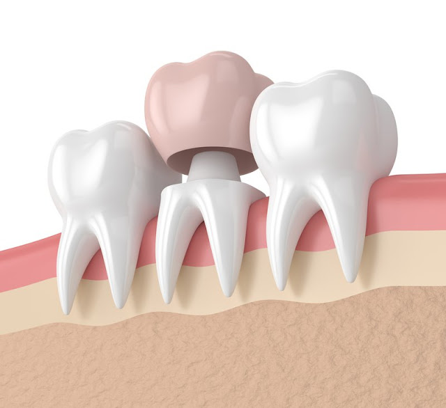 Most Common Dental Issues for Seniors
