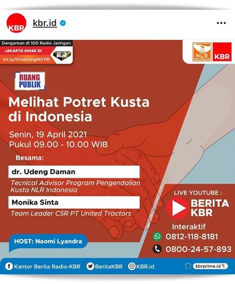 Potret Kusta di Indonesia